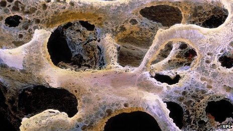Protein to Treat Brittle Bone Disease