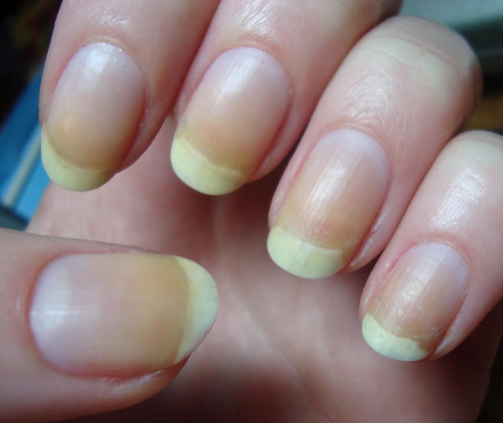 Пожелтели ногти