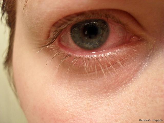 bloodshot-eyes-1