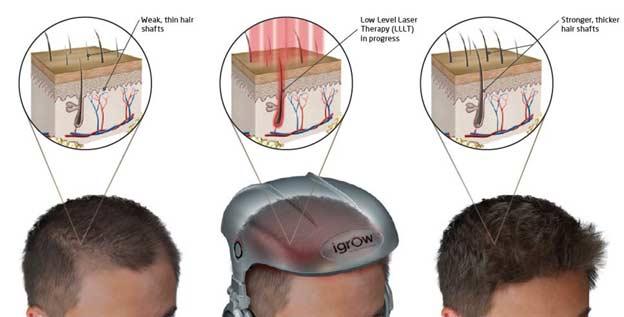 Hair Loss or Thinning