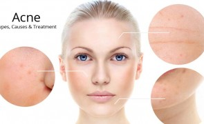 Acne: Types, Causes & Treatment