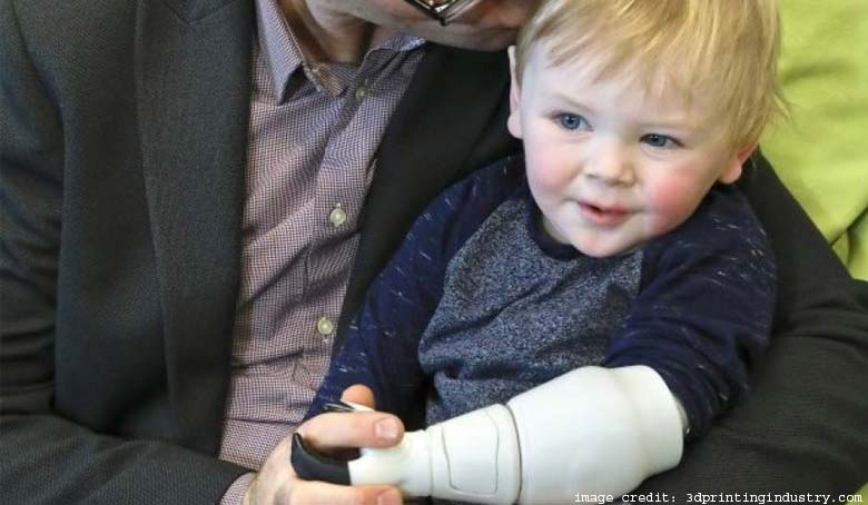 Infant Prosthetic Arm