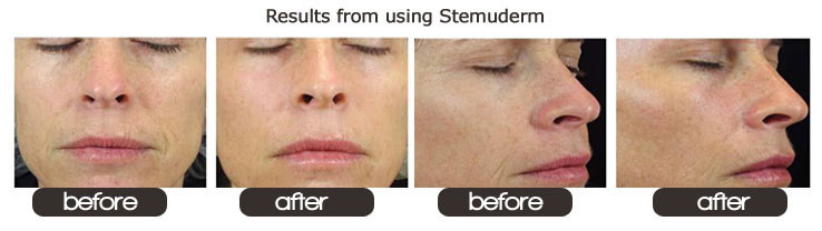 stemuderm-before-after