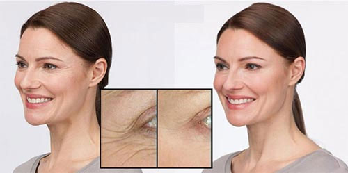 stemuderm-eye-anti-wrinkle